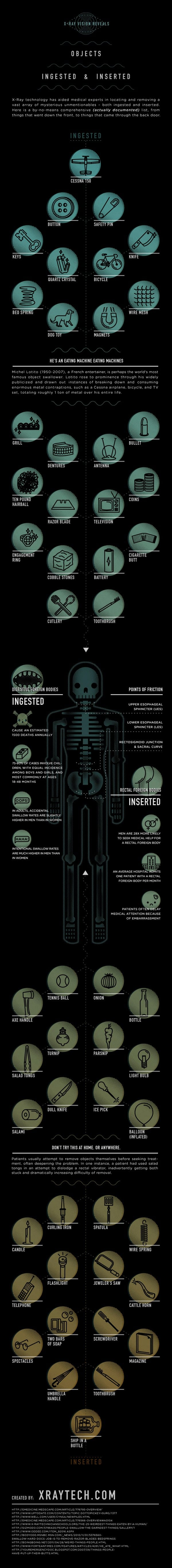 X Ray Vision Reveals Objects Ingested and Inserted infographic
